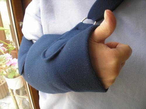 Arm in sling